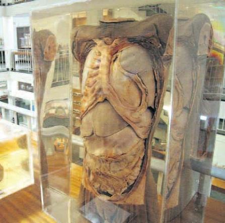Medical Morphology Museum, Cape Town Museums, Cape Town